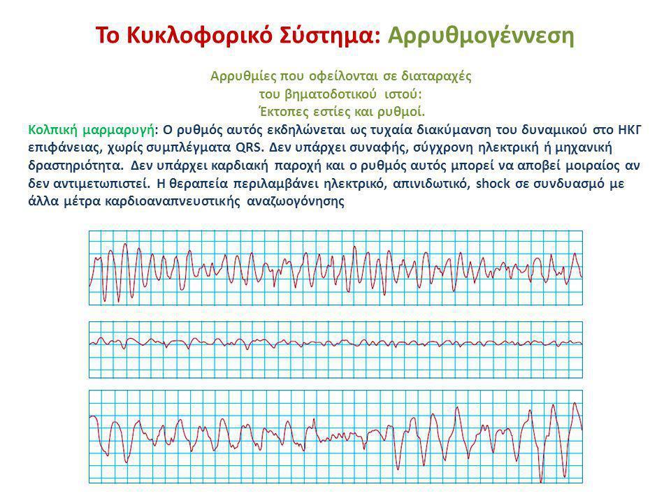 Το Κυκλοφορικό Σύστημα: Αρρυθμογέννεση Αρρυθμίες που οφείλονται σε διαταραχές του βηματοδοτικού ιστού: Έκτοπες εστίες και ρυθμοί. Κολπική μαρμαρυγή: Ο