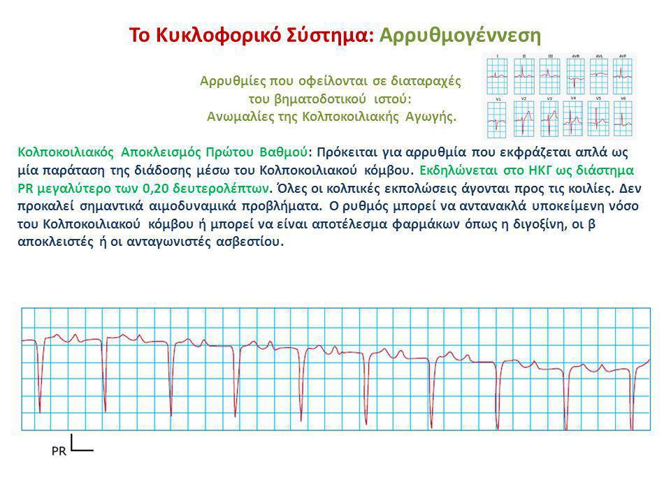 Το Κυκλοφορικό Σύστημα: Αρρυθμογέννεση Αρρυθμίες που οφείλονται σε διαταραχές του βηματοδοτικού ιστού: Διαταραχές της αγωγής του ερεθίσματος.