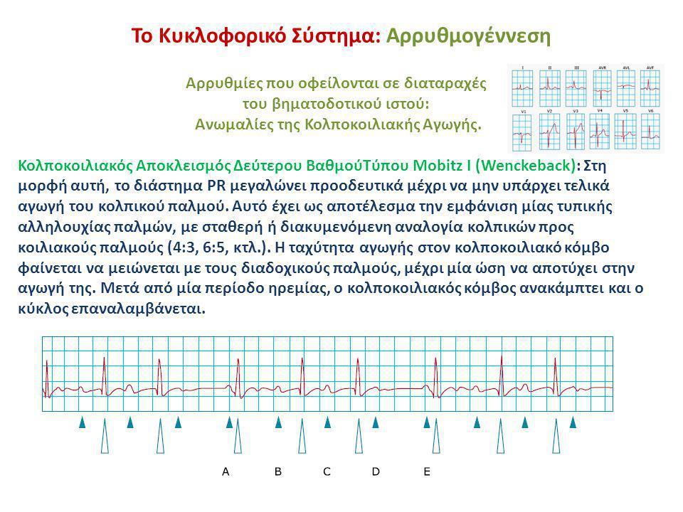 Το Κυκλοφορικό Σύστημα: Αρρυθμογέννεση Αρρυθμίες που οφείλονται σε διαταραχές του βηματοδοτικού ιστού: Ανωμαλίες της Κολποκοιλιακής Αγωγής. Κολποκοιλι