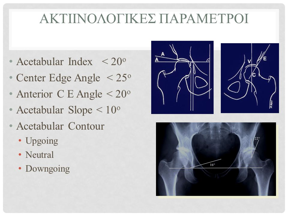 ΑΚΤΙΙΝΟΛΟΓΙΚΕΣ ΠΑΡΑΜΕΤΡΟΙ • Acetabular Index < 20 o • Center Edge Angle < 25 o • Anterior C E Angle < 20 o • Acetabular Slope < 10 o • Acetabular Cont