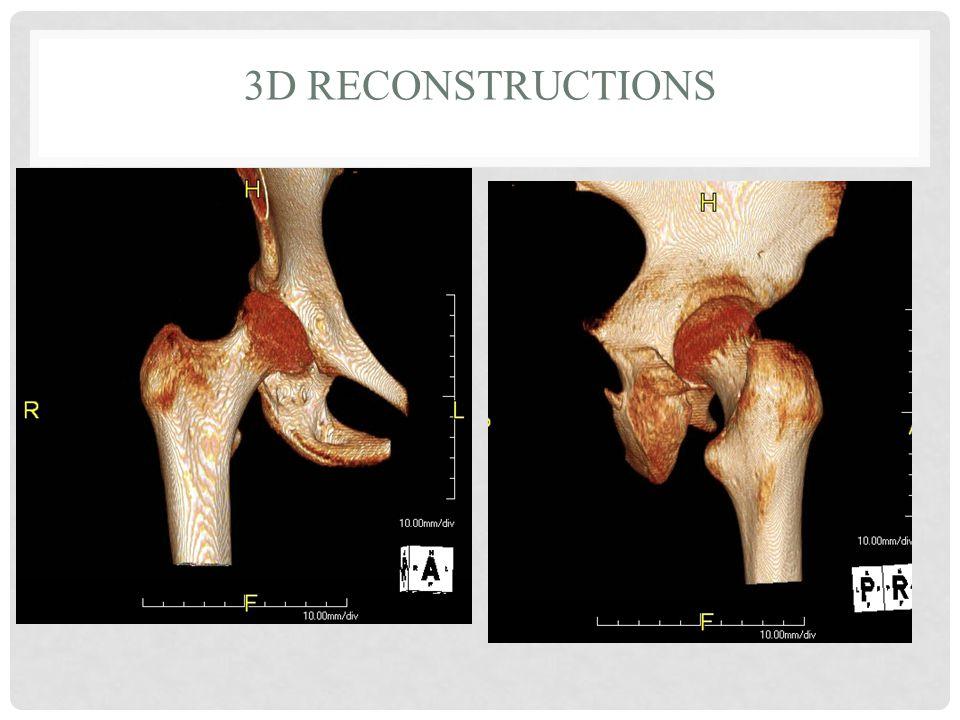 3D RECONSTRUCTIONS