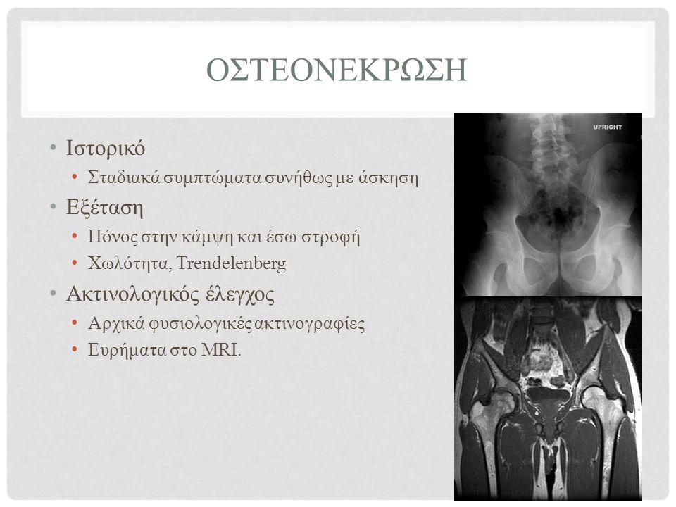 ΟΣΤΕΟΝΕΚΡΩΣΗ • Ιστορικό • Σταδιακά συμπτώματα συνήθως με άσκηση • Εξέταση • Πόνος στην κάμψη και έσω στροφή • Χωλότητα, Trendelenberg • Ακτινολογικός έλεγχος • Αρχικά φυσιολογικές ακτινογραφίες • Ευρήματα στο MRΙ.