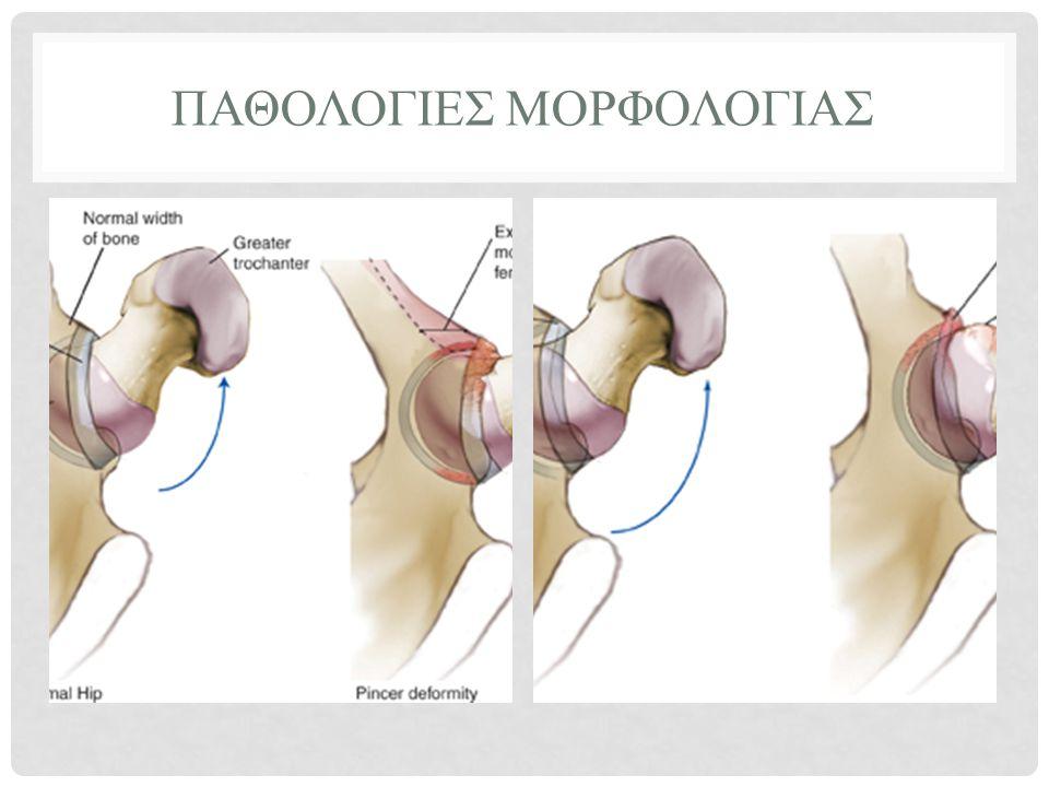 ΑΚΤΙΝΟΛΟΓΙΚΟΣ ΕΛΕΓΧΟΣ • Ακτινογραφίες • Συνήθως καθαρές • Ειδικές ακτινογραφίες • Λοξές, Προφίλ • Αξονικός– Λιγότερη ακρίβεια από το MRI • MRI • Προβλήματα στην εικόνα του αρθρικού και υποχείλιου χόνδρου.
