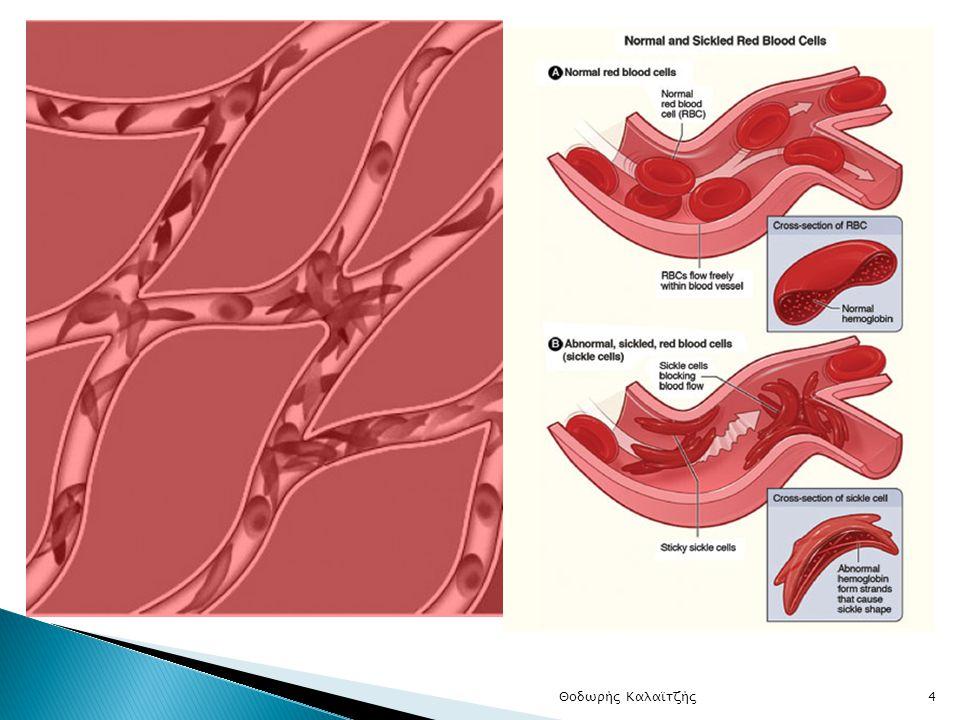  Δρεπανοκύτταρα: α) Παρεμπόδιση φυσιολογικής κυκλοφορίας του αίματος (προβλήματα σε πνεύμονες και σπλήνα)  β) Γρηγορότερη καταστροφή δρεπανοκυττάρων από ότι φυσιολογικά (συμπτώματα αναιμίας)  Ασθενείς: β s β s (μόνο HbS – καθόλου HbA)  Φορείς: Β s β s - ασυμπτωματικοί Θοδωρής Καλαϊτζής4