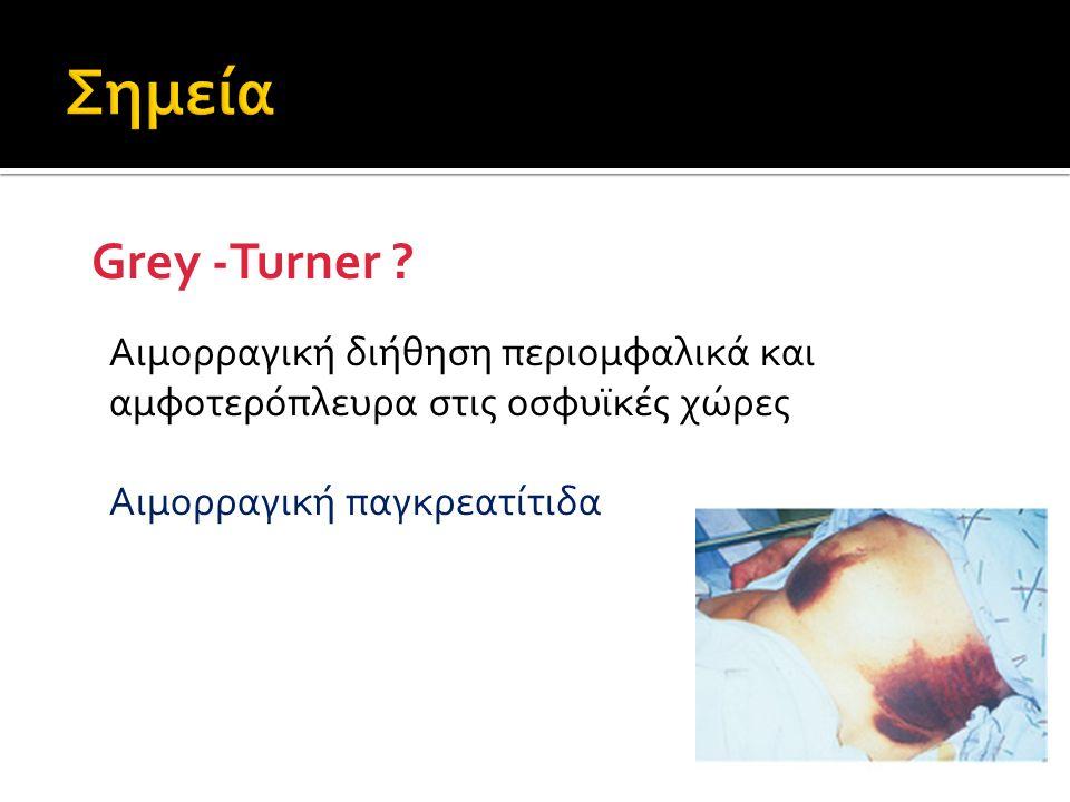 Grey -Turner ? Αιμορραγική διήθηση περιομφαλικά και αμφοτερόπλευρα στις οσφυϊκές χώρες Αιμορραγική παγκρεατίτιδα