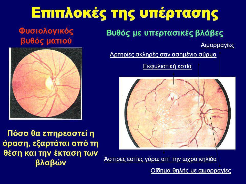 Εκφυλιστική εστία Αρτηρίες σκληρές σαν ασημένιο σύρμα Αιμορραγίες Άσπρες εστίες γύρω απ' την ωχρά κηλίδα Οίδημα θηλής με αιμορραγίες Φυσιολογικός βυθός ματιού Βυθός με υπερτασικές βλάβες Πόσο θα επηρεαστεί η όραση, εξαρτάται από τη θέση και την έκταση των βλαβών