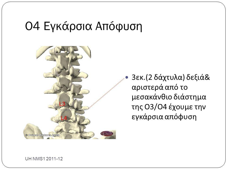 Ο4 Εγκάρσια Απόφυση UH NMS1 2011-12  3εκ.(2 δάχτυλα) δεξιά& αριστερά από το μεσακάνθιο διάστημα της Ο3/Ο4 έχουμε την εγκάρσια απόφυση L3 L4