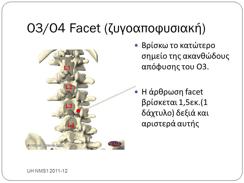 Ο3/Ο4 Facet (ζυγοαποφυσιακή) UH NMS1 2011-12  Βρίσκω το κατώτερο σημείο της ακανθώδους απόφυσης του Ο3.  Η άρθρωση facet βρίσκεται 1,5εκ.(1 δάχτυλο)
