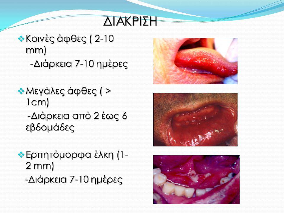 ΔΙΑΚΡΙΣΗ  Κοινές άφθες ( 2-10 mm) -Διάρκεια 7-10 ημέρες -Διάρκεια 7-10 ημέρες  Μεγάλες άφθες ( > 1cm) -Διάρκεια από 2 έως 6 εβδομάδες -Διάρκεια από 2 έως 6 εβδομάδες  Ερπητόμορφα έλκη (1- 2 mm) -Διάρκεια 7-10 ημέρες -Διάρκεια 7-10 ημέρες