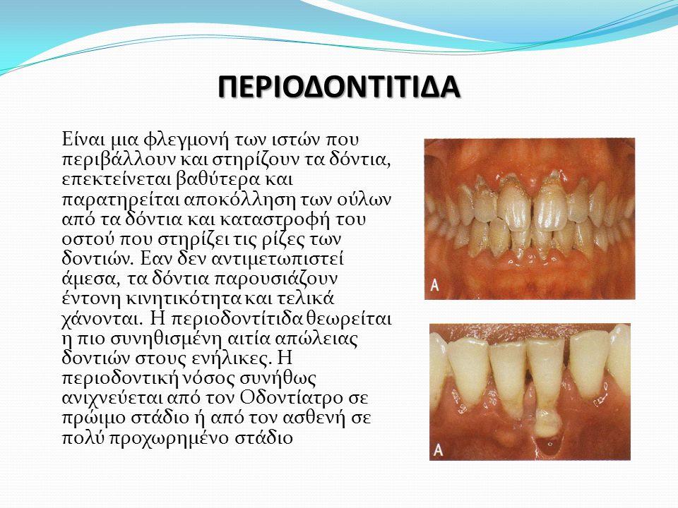ΠΕΡΙΟΔΟΝΤΙΤΙΔΑ Είναι μια φλεγμονή των ιστών που περιβάλλουν και στηρίζουν τα δόντια, επεκτείνεται βαθύτερα και παρατηρείται αποκόλληση των ούλων από τα δόντια και καταστροφή του οστού που στηρίζει τις ρίζες των δοντιών.