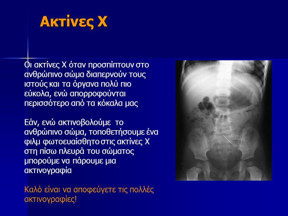 Ακτίνες Χ Ακτίνες Χ Οι ακτίνες Χ όταν προσπίπτουν στο ανθρώπινο σώμα διαπερνούν τους ιστούς και τα όργανα πολύ πιο εύκολα, ενώ απορροφούνται περισσότε