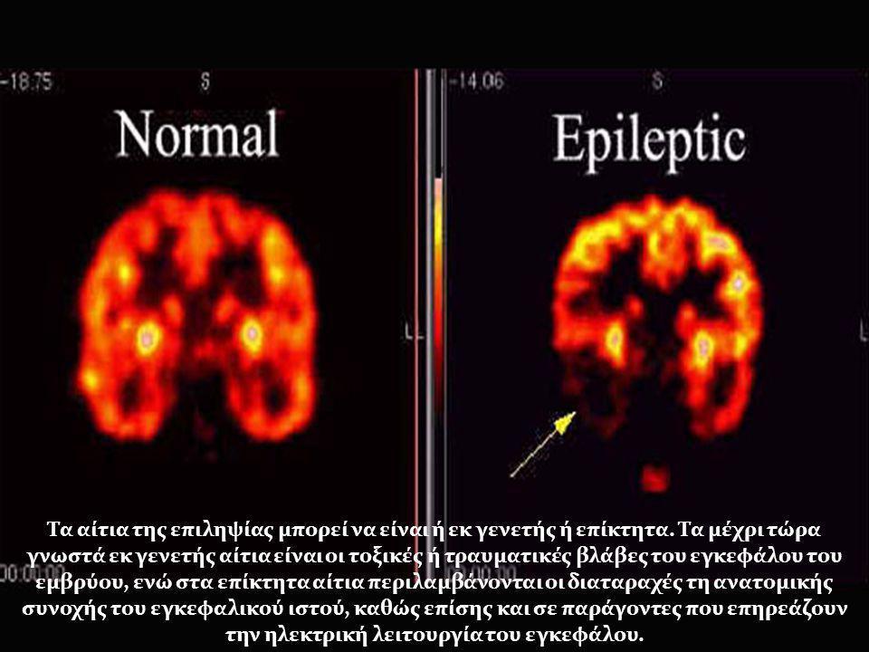 Τα αίτια της επιληψίας μπορεί να είναι ή εκ γενετής ή επίκτητα. Τα μέχρι τώρα γνωστά εκ γενετής αίτια είναι οι τοξικές ή τραυματικές βλάβες του εγκεφά