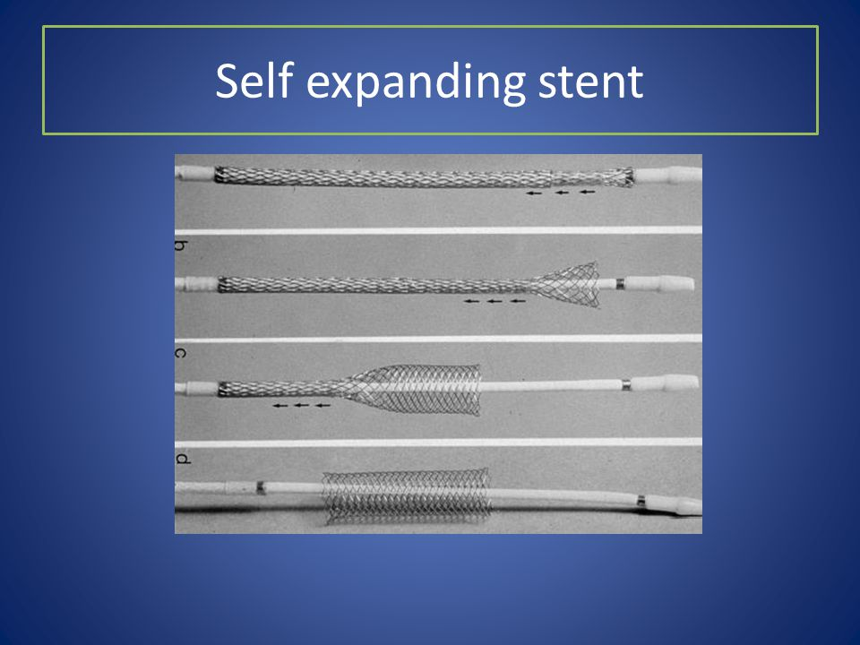 Self expanding stent