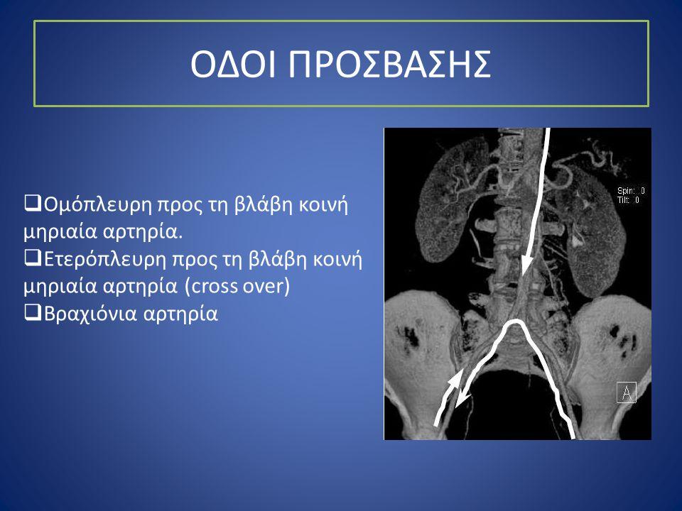 ΟΔΟΙ ΠΡΟΣΒΑΣΗΣ  Ομόπλευρη προς τη βλάβη κοινή μηριαία αρτηρία.  Ετερόπλευρη προς τη βλάβη κοινή μηριαία αρτηρία (cross over)  Βραχιόνια αρτηρία