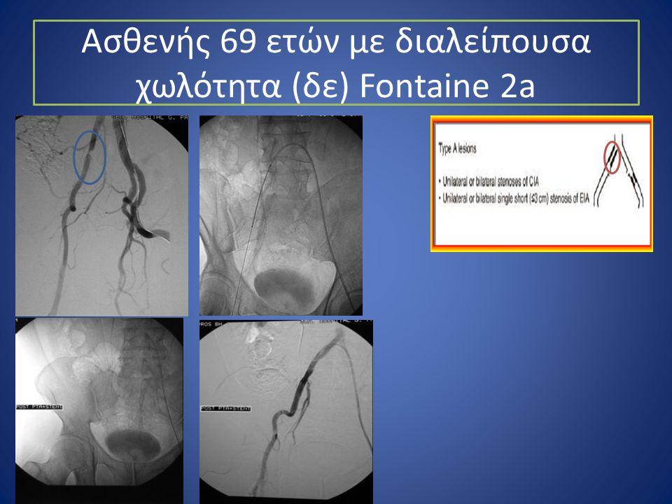 Ασθενής 69 ετών με διαλείπουσα χωλότητα (δε) Fontaine 2a