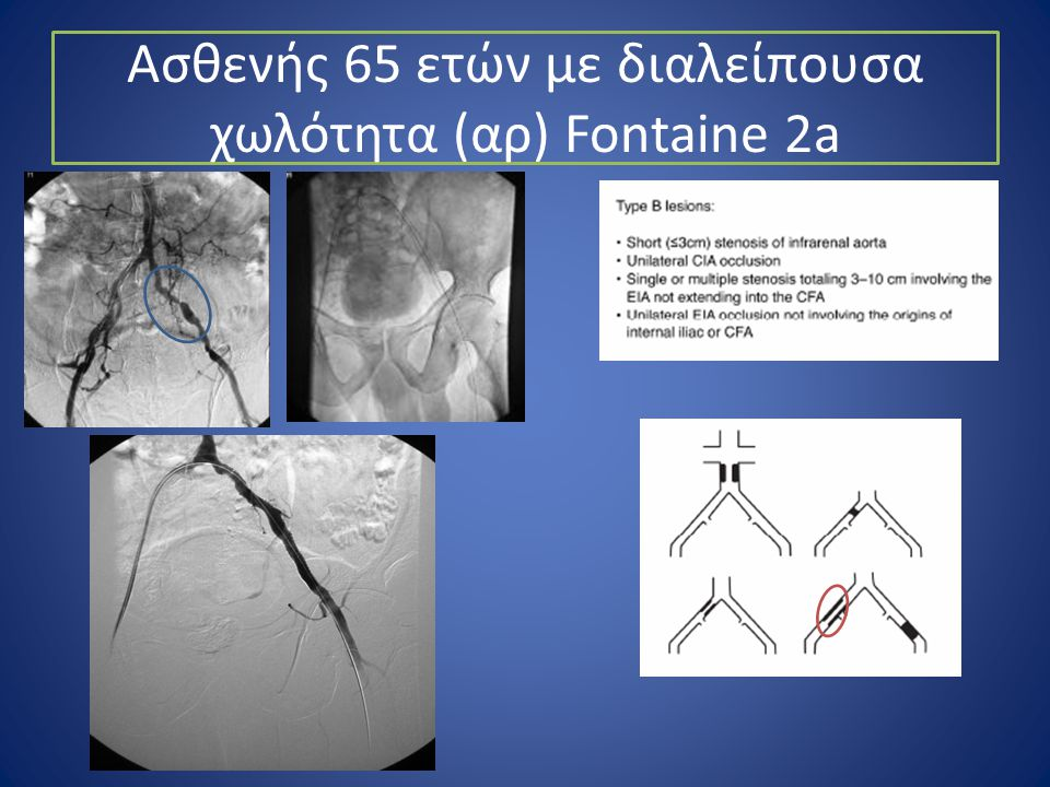 Aσθενής 65 ετών με διαλείπουσα χωλότητα (αρ) Fontaine 2a