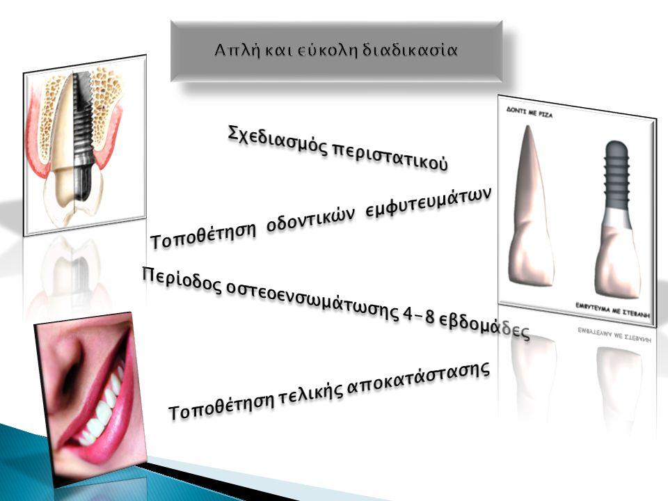 Επένθετη ολική οδοντοστοιχία με μειωμένη υπερώα που στηρίζετε σε μπάρα