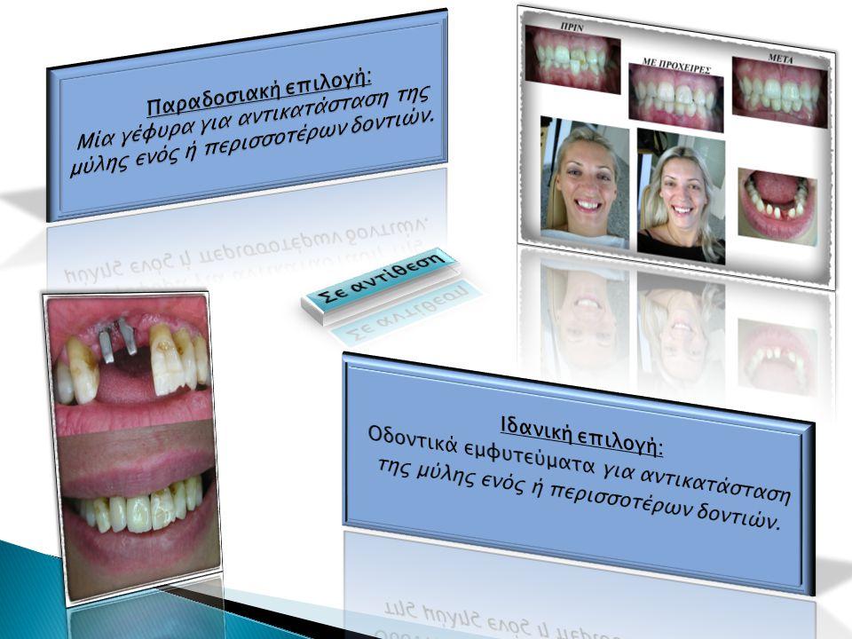 Να σας επιτρέψουν να δαγκώνετε και να μασάτε φυσιολογικά Να σας αφήσουν να απολαύσετε τα αγαπημένα σας φαγητά ξανά, όπως με τα φυσικά σας δόντια Να βοηθήσουν να βελτιώσετε τις διατροφικές σας συνήθειες Να βοηθήσουν τα υπόλοιπα φυσικά δόντια σας να παραμείνουν στην θέση τους Να σας επιτρέψουν μιλώντας φυσιολογικά, να είστε πραγματικά ο εαυτός σας Να σας βοηθήσουν να είστε πιο ελκυστικοί Να σας προσφέρουν μια οριστική και ασφαλή λύση για τα δόντια που έφυγαν Απλά βοηθούν να απολαύσετε τη ζωή στο έπακρο Τέλος γιατί έτσι σας αρέσει