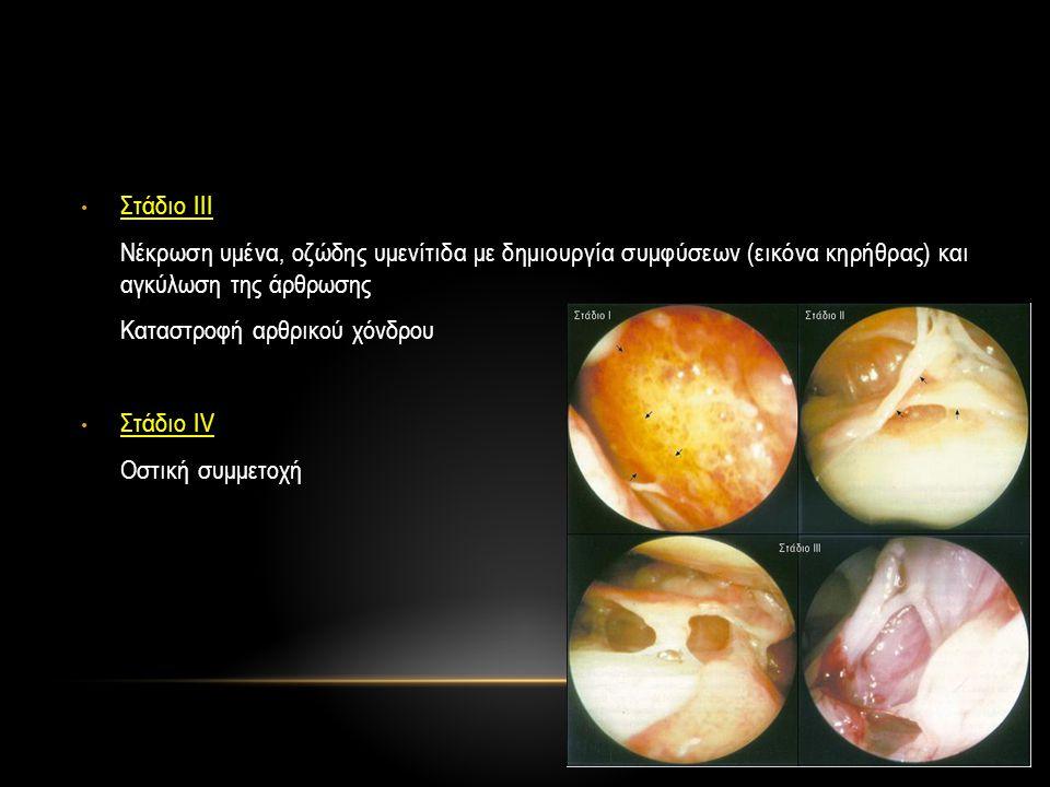 • Στάδιο ΙΙΙ Νέκρωση υμένα, οζώδης υμενίτιδα με δημιουργία συμφύσεων (εικόνα κηρήθρας) και αγκύλωση της άρθρωσης Καταστροφή αρθρικού χόνδρου • Στάδιο
