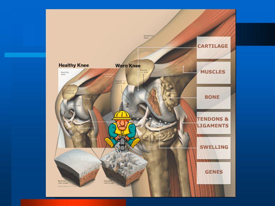 Φθορά του αρθρικού χόνδρου Φθορά είναι η αφαίρεση υλικού από την επιφάνεια με μηχανική δράση : Φθορά από άμεση επαφή, φθορά από καταπόνηση • Φθορά από