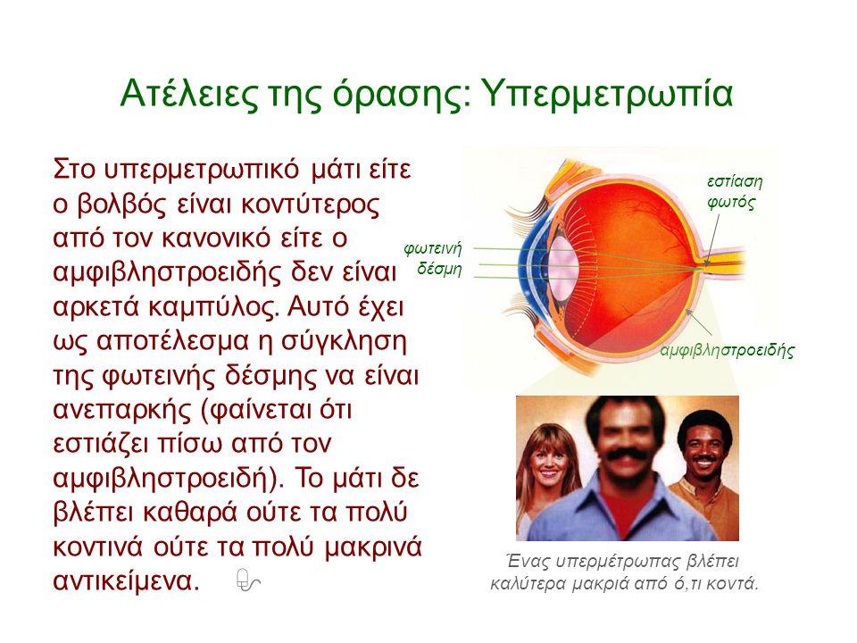 Ατέλειες της όρασης: Υπερμετρωπία φωτεινή δέσμη εστίαση φωτός αμφιβληστροειδής Στο υπερμετρωπικό μάτι είτε ο βολβός είναι κοντύτερος από τον κανονικό