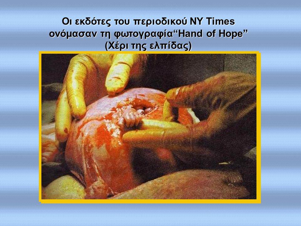 """Οι εκδότες του περιοδικού περιοδικού NY NY Times ονόμασαν τη φωτογραφία""""Hand φωτογραφία""""Hand of Hope"""" (Χέρι (Χέρι της ελπίδας)"""