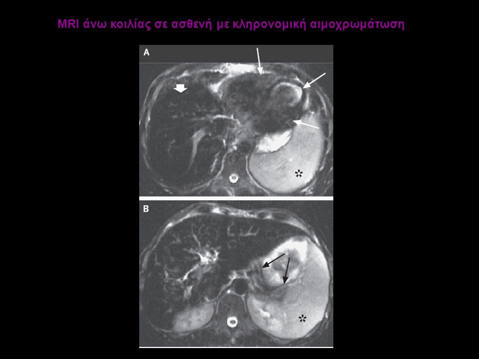 MRI άνω κοιλίας σε ασθενή με κληρονομική αιμοχρωμάτωση