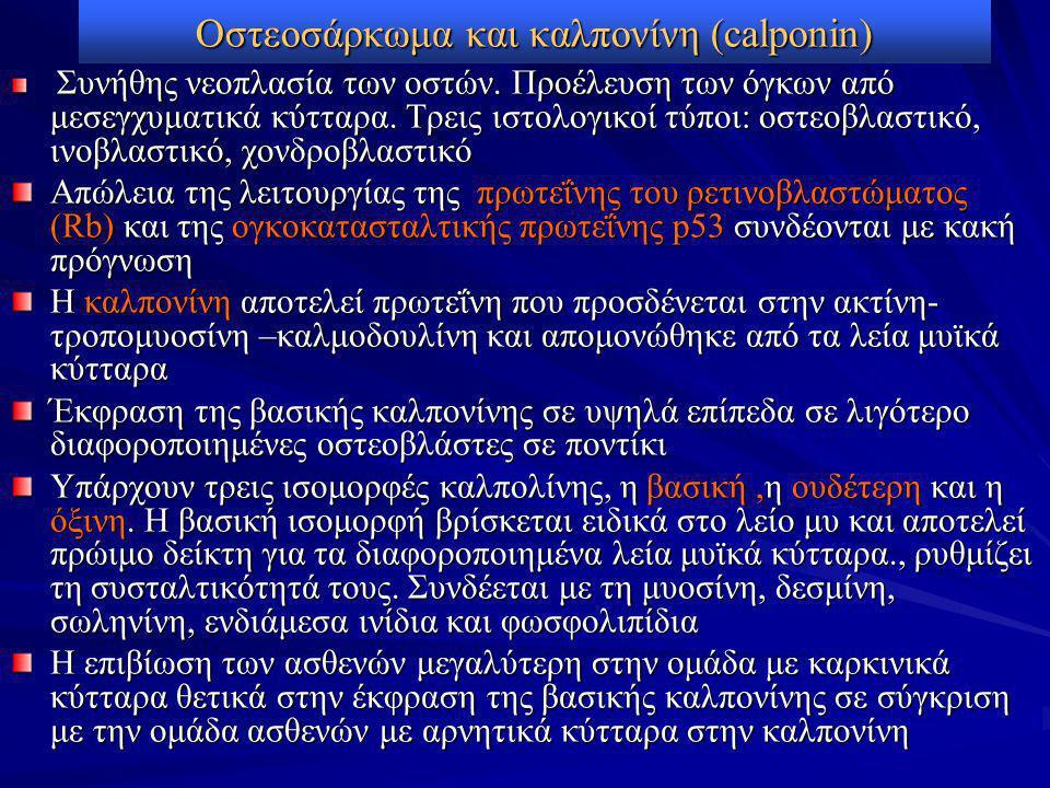 Οστεοσάρκωμα και καλπονίνη (calponin) Συνήθης νεοπλασία των οστών.