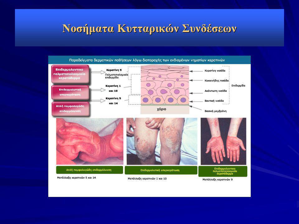 Νοσήματα Κυτταρικών Συνδέσεων