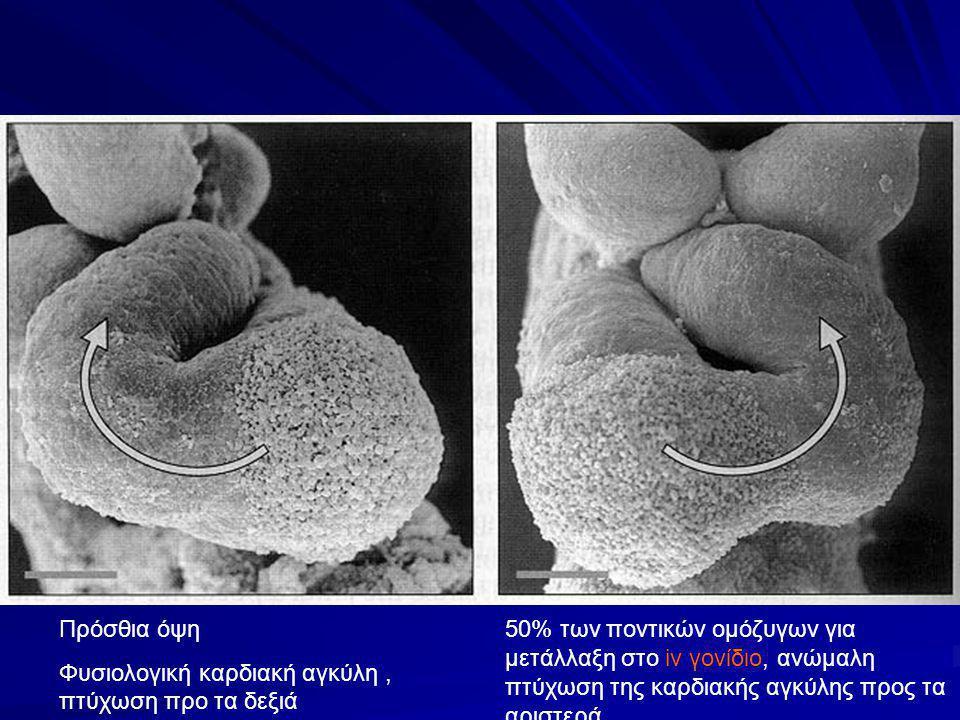 Πρόσθια όψη Φυσιολογική καρδιακή αγκύλη, πτύχωση προ τα δεξιά 50% των ποντικών ομόζυγων για μετάλλαξη στο iv γονίδιο, ανώμαλη πτύχωση της καρδιακής αγκύλης προς τα αριστερά