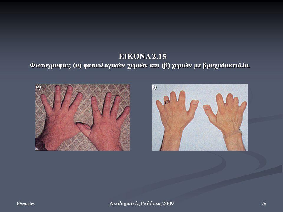 iGenetics 26 Ακαδημαϊκές Εκδόσεις 2009 ΕΙΚΟΝΑ 2.15 Φωτογραφίες (α) φυσιολογικών χεριών και (β) χεριών με βραχυδακτυλία. α)β)