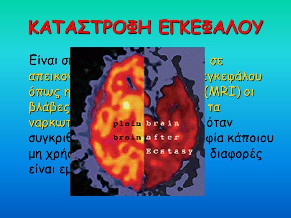 ΚΑΤΑΣΤΡΟΦΗ ΕΓΚΕΦΑΛΟΥ σε απεικονιστικές εξετάσεις του εγκεφάλου όπως η μαγνητική τομογραφία (MRI) οι βλάβες που προκαλούνται από τα ναρκωτικά φαίνονται