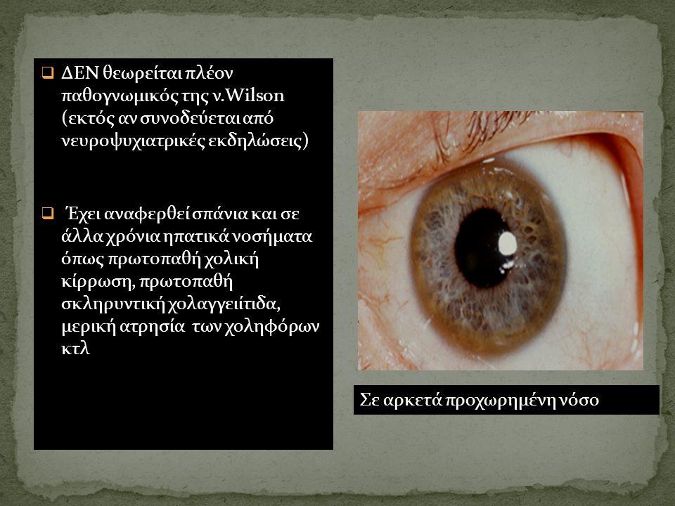 Σε αρκετά προχωρημένη νόσο  ΔΕΝ θεωρείται πλέον παθογνωμικός της ν.Wilson (εκτός αν συνοδεύεται από νευροψυχιατρικές εκδηλώσεις)  Έχει αναφερθεί σπά