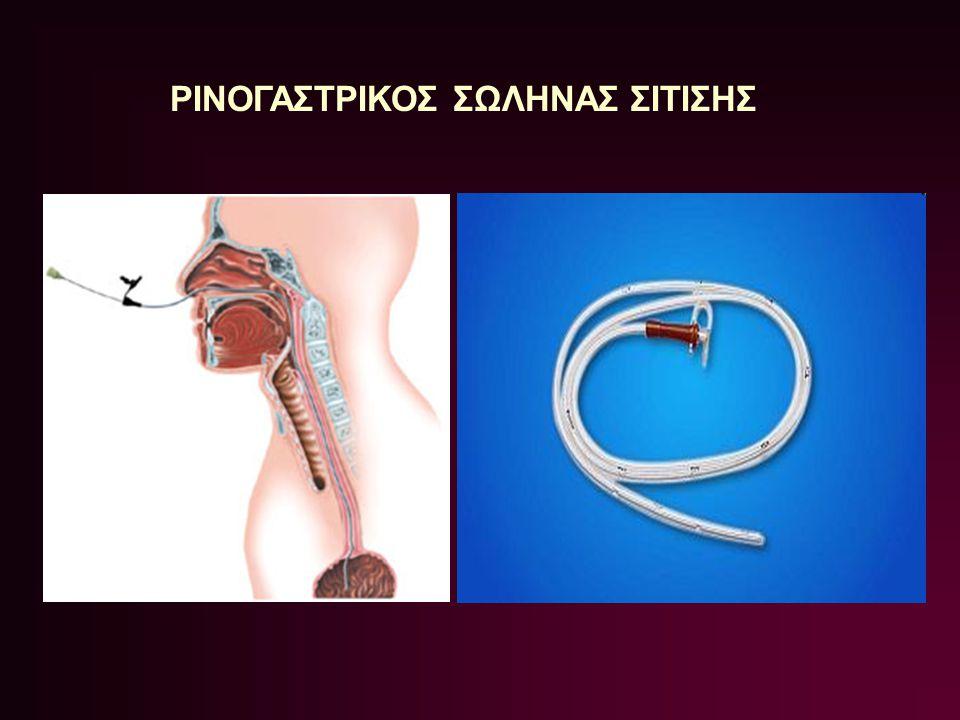 Ε) μέτρηση πίεσης κατά την εισπνοή με μανόμετρο Σε τοποθέτηση στο πνεύμονα παράγει αρνητικό σήμα, ενώ στο στομάχι ή έντερο θετικό.