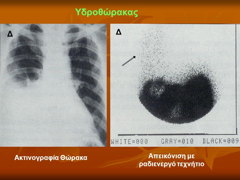 Υδροθώρακας Ακτινογραφία Θώρακα Απεικόνιση με ραδιενεργό τεχνήτιο Δ Δ