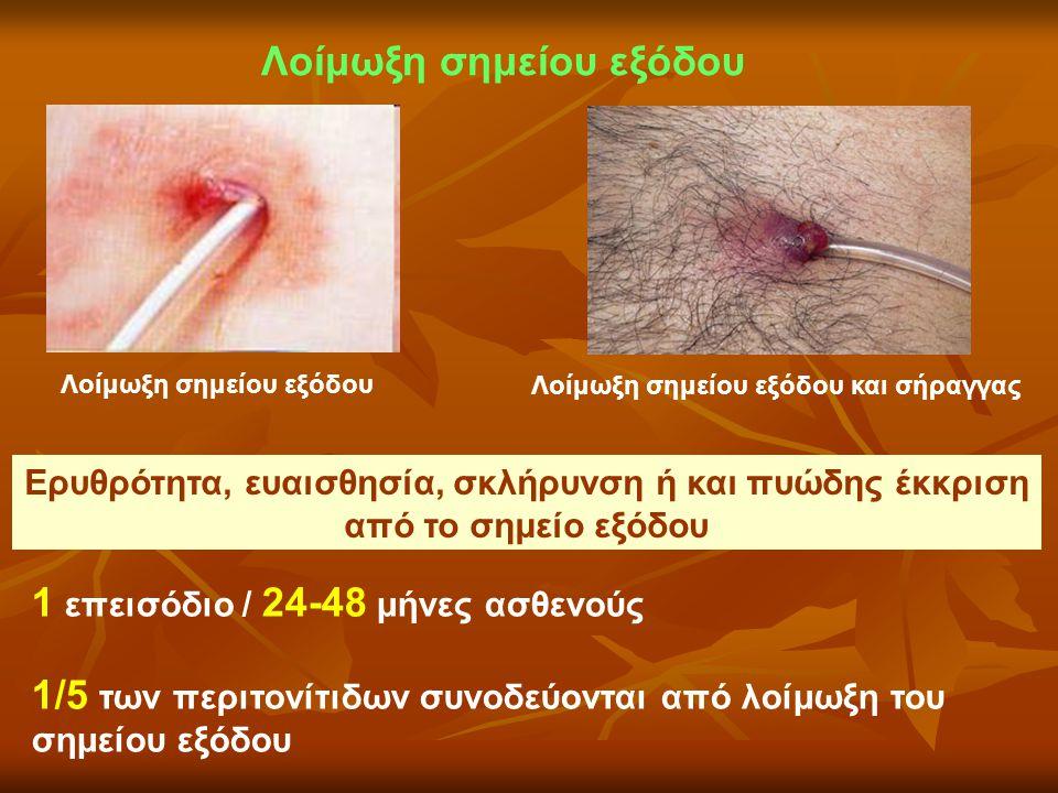 Λοίμωξη σημείου εξόδου Λοίμωξη σημείου εξόδου και σήραγγας 1 επεισόδιο / 24-48 μήνες ασθενούς 1/5 των περιτονίτιδων συνοδεύονται από λοίμωξη του σημεί