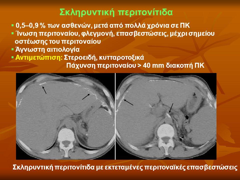 Σκληρυντική περιτονίτιδα  0,5–0,9 % των ασθενών, μετά από πολλά χρόνια σε ΠΚ  Ίνωση περιτοναίου, φλεγμονή, επασβεστώσεις, μέχρι σημείου οστέωσης του
