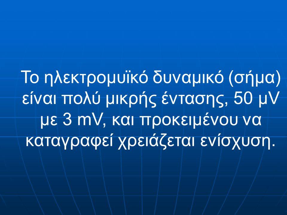 Το ηλεκτρομυϊκό δυναμικό (σήμα) είναι πολύ μικρής έντασης, 50 μV με 3 mV, και προκειμένου να καταγραφεί χρειάζεται ενίσχυση.