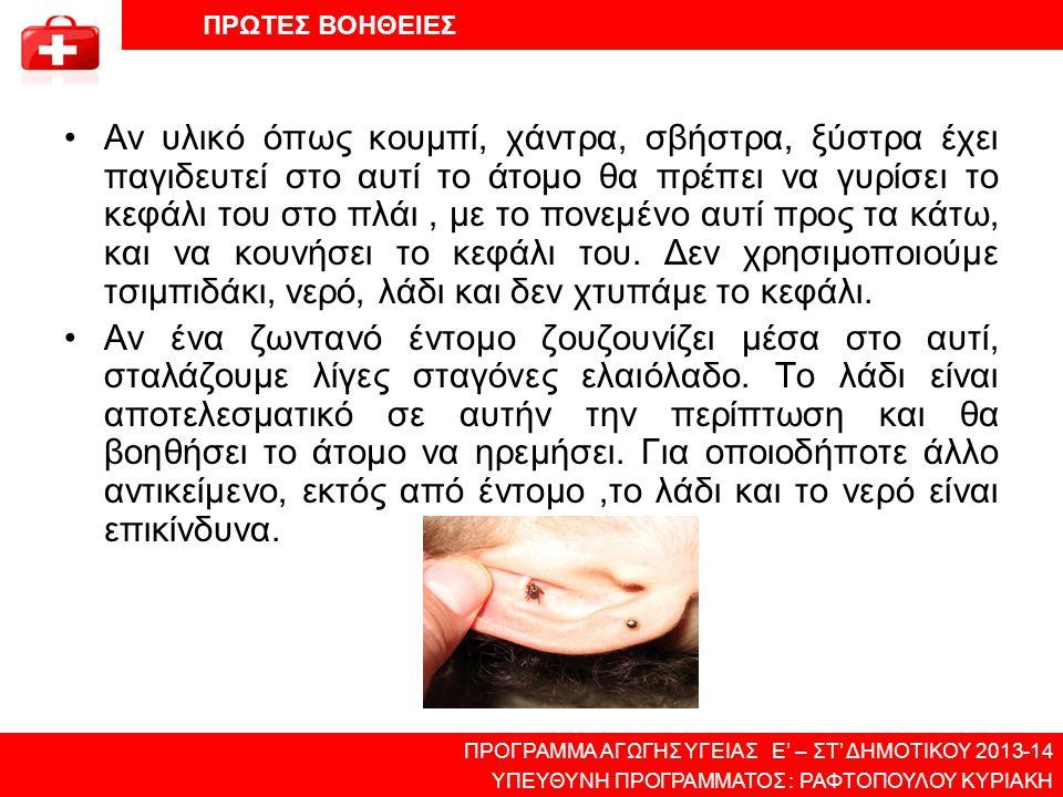 •Αν υλικό όπως κουμπί, χάντρα, σβήστρα, ξύστρα έχει παγιδευτεί στο αυτί το άτομο θα πρέπει να γυρίσει το κεφάλι του στο πλάι, με το πονεμένο αυτί προς