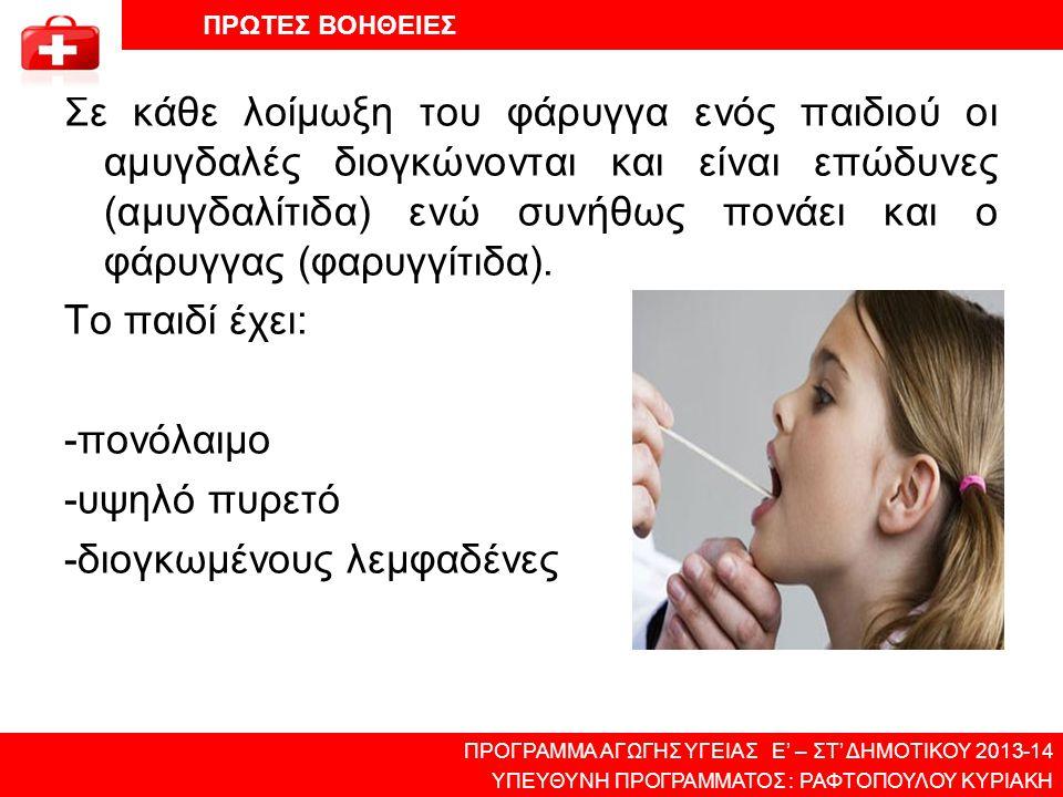 Σε κάθε λοίμωξη του φάρυγγα ενός παιδιού οι αμυγδαλές διογκώνονται και είναι επώδυνες (αμυγδαλίτιδα) ενώ συνήθως πονάει και ο φάρυγγας (φαρυγγίτιδα).