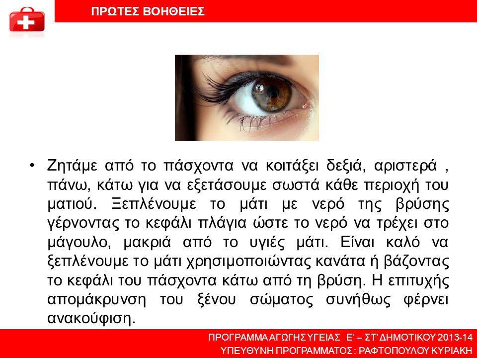 •Ζητάμε από το πάσχοντα να κοιτάξει δεξιά, αριστερά, πάνω, κάτω για να εξετάσουμε σωστά κάθε περιοχή του ματιού. Ξεπλένουμε το μάτι με νερό της βρύσης