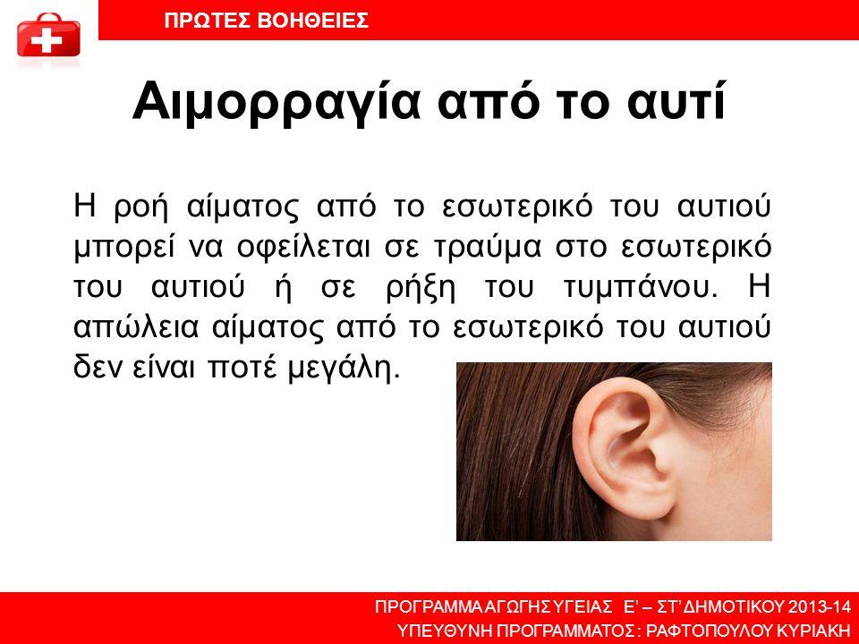 Αιμορραγία από το αυτί Η ροή αίματος από το εσωτερικό του αυτιού μπορεί να οφείλεται σε τραύμα στο εσωτερικό του αυτιού ή σε ρήξη του τυμπάνου. Η απώλ