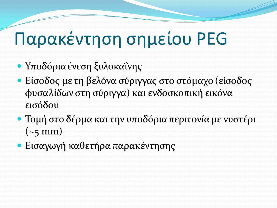 Παρακέντηση σημείου PEG  Υποδόρια ένεση ξυλοκαΐνης  Είσοδος με τη βελόνα σύριγγας στο στόμαχο (είσοδος φυσαλίδων στη σύριγγα) και ενδοσκοπική εικόνα