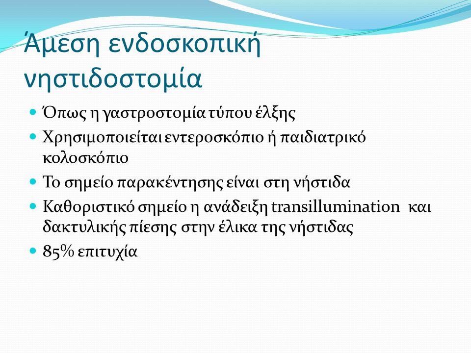 Άμεση ενδοσκοπική νηστιδοστομία  Όπως η γαστροστομία τύπου έλξης  Χρησιμοποιείται εντεροσκόπιο ή παιδιατρικό κολοσκόπιο  Το σημείο παρακέντησης είν