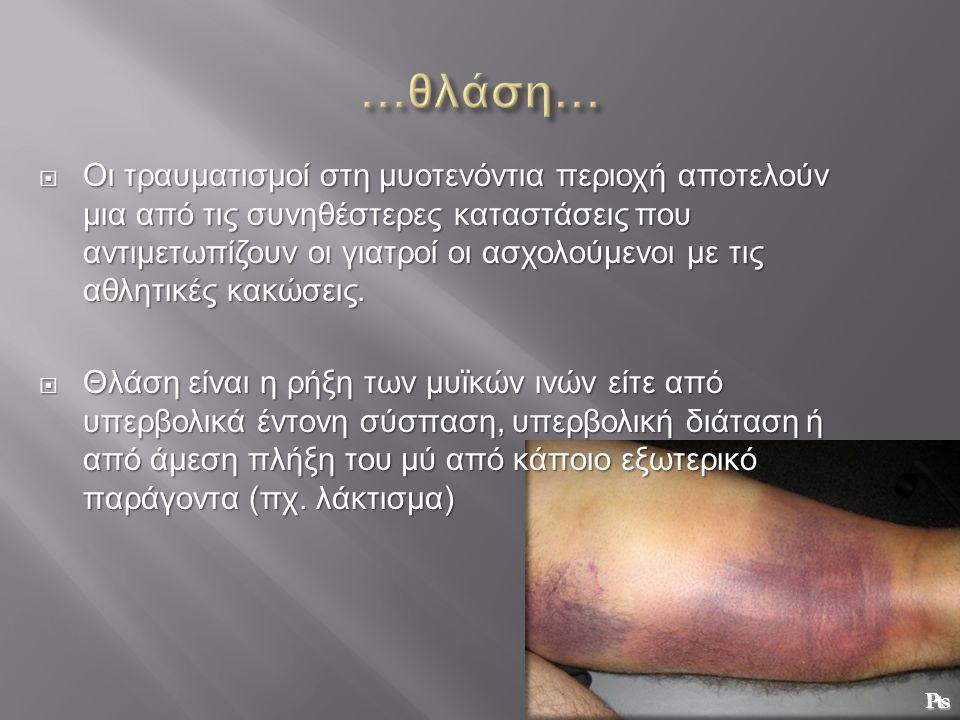  Οι τραυματισμοί στη μυοτενόντια περιοχή αποτελούν μια από τις συνηθέστερες καταστάσεις που αντιμετωπίζουν οι γιατροί οι ασχολούμενοι με τις αθλητικέ