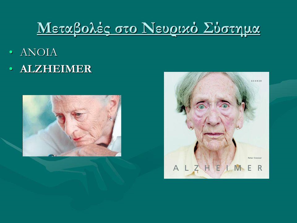 Μεταβολές στο Νευρικό Σύστημα •ΑΝΟΙΑ •ALZHEIMER