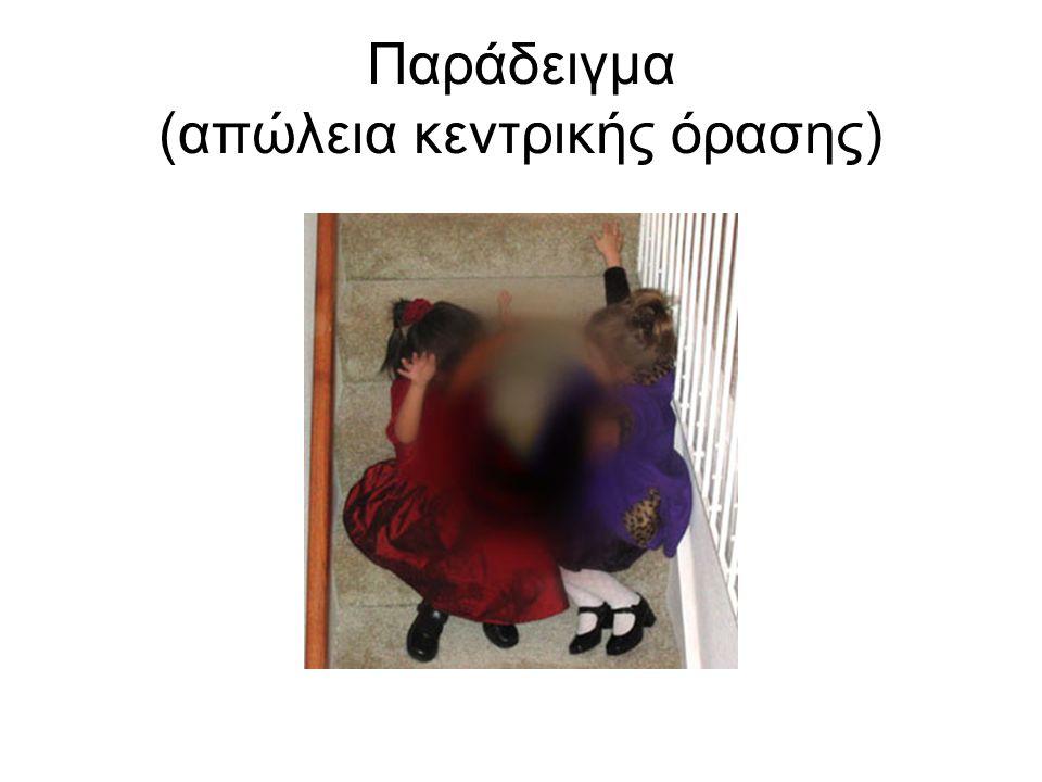 Παράδειγμα (απώλεια κεντρικής όρασης)