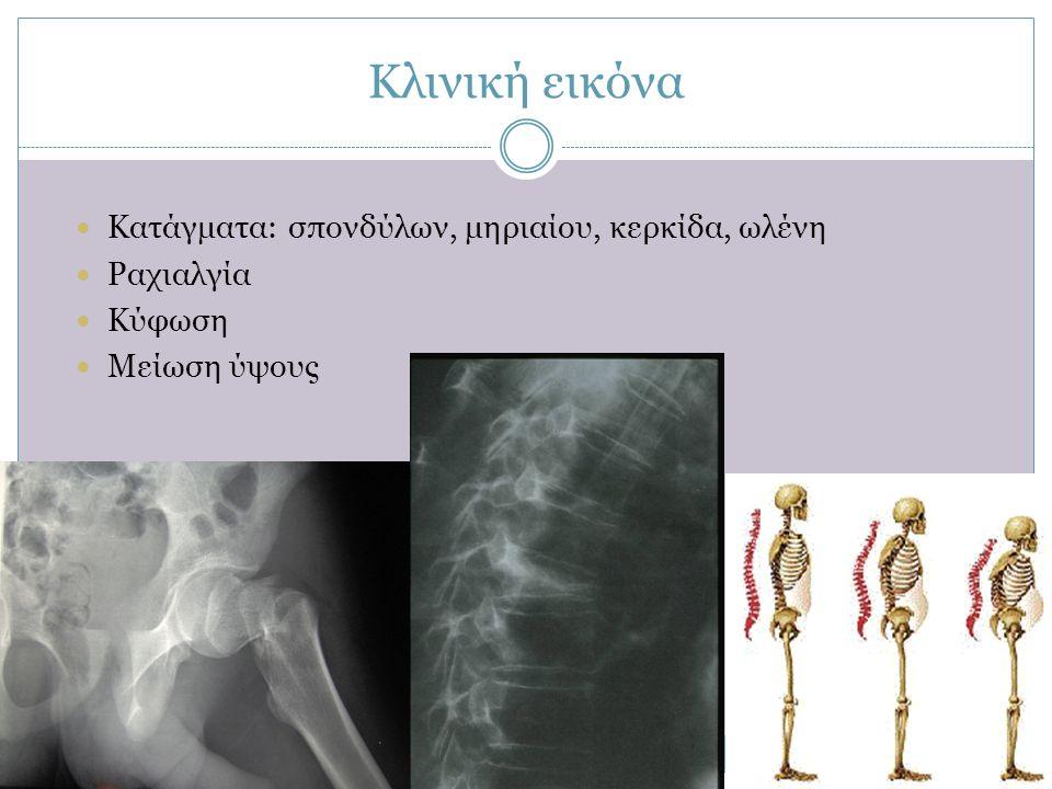 Κλινική εικόνα  Κατάγματα: σπονδύλων, μηριαίου, κερκίδα, ωλένη  Ραχιαλγία  Κύφωση  Μείωση ύψους