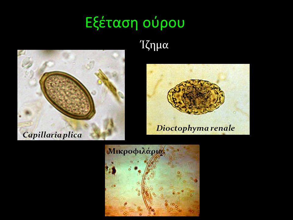 Εξέταση ούρου Ίζημα Capillaria plica Dioctophyma renale Μικροφιλάρια