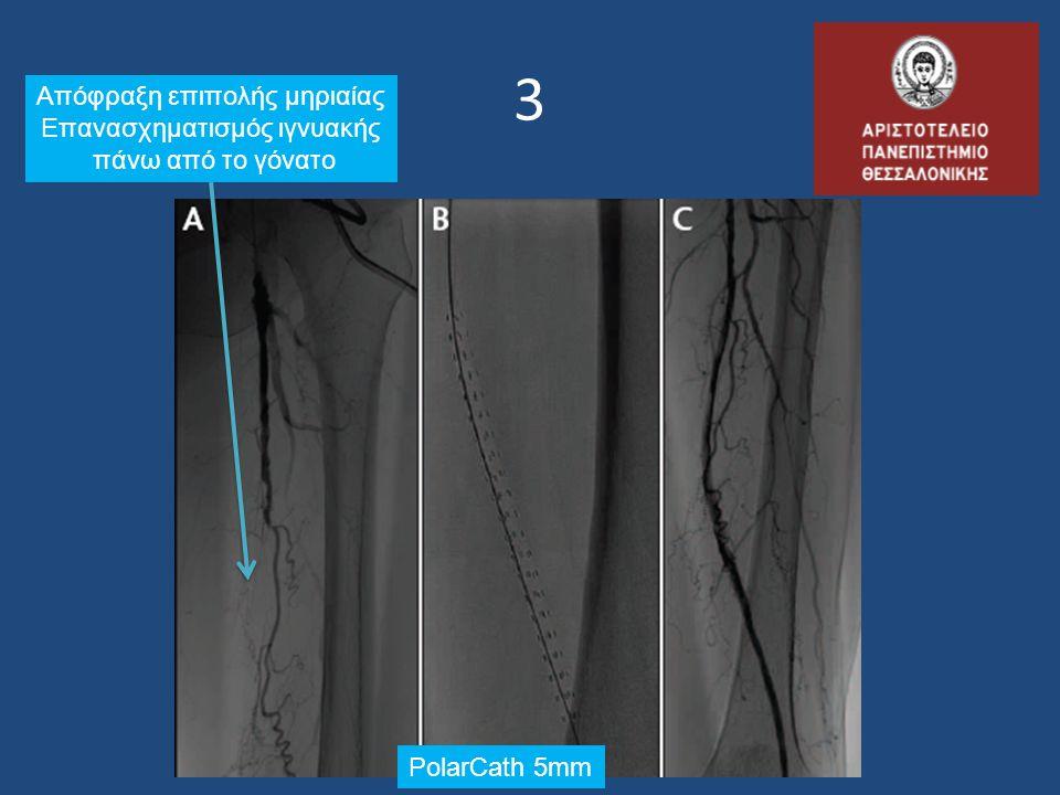 3 Απόφραξη επιπολής μηριαίας Επανασχηματισμός ιγνυακής πάνω από το γόνατο PolarCath 5mm